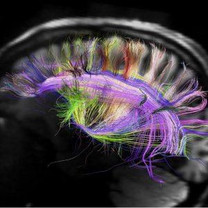 پژوهشگران برای اولین بار مغز انسان را به اینترنت متصل کردند
