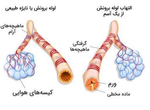 درمان تضمینی آسم در خانه